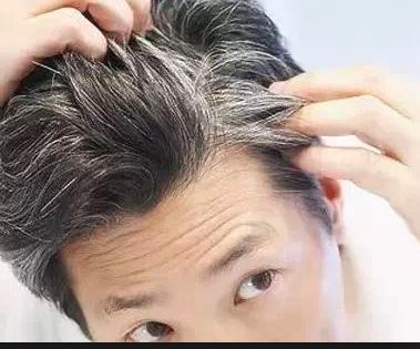સફેદ વાળની સમસ્યાથી પીડાવ છો? તેમાંથી છૂટકારો ઈચ્છો છો,  તો આટલું કરો